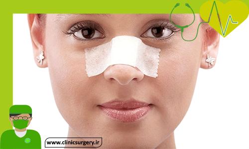 مراقبت بعد از جراحی بینی